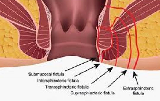 What is Fistula in Ano ?